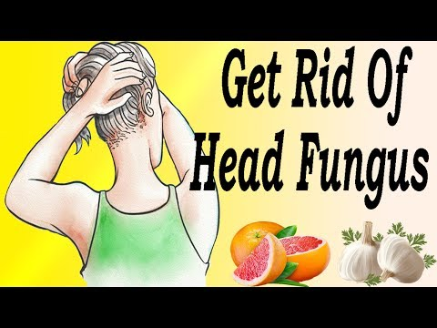 Best Natural Tips To Get Rid Of Head Fungus Naturally In 7 Days   Natural Remedy For Mongolia