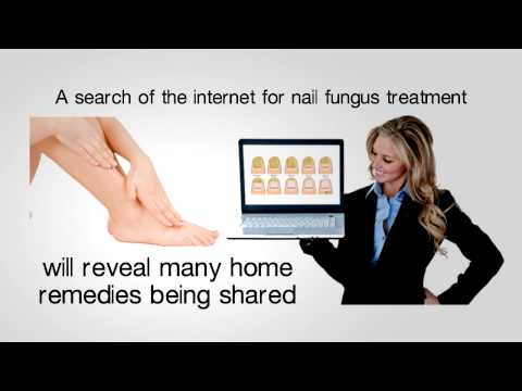 How to get rid of fungal nail infection – fast and effectively!