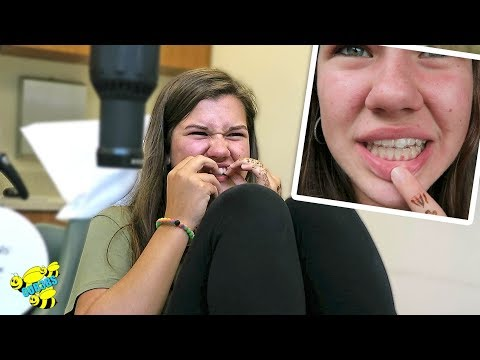 😃 GETTING BRACES OFF! 😃 ~ MY RETAINERS DON'T FIT, SO PAINFUL! ~ Part 3