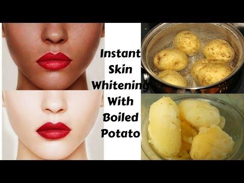 Permanent Skin Whitening With Boiled Potato | Get Instant Fairness & Milky Whiten Skin | 100% Result