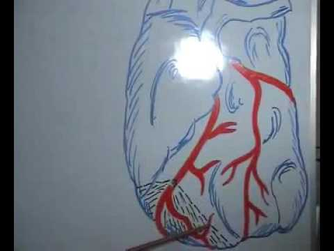 how to prevent HEART ATTACK  Tamil