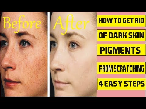 How to Get Rid of Dark Skin Pigments From Scratching - How To Clear Dark Inner Thighs