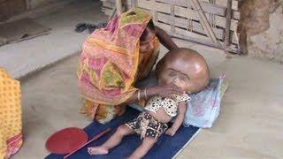 Ayuda para niña con hidrocefalia