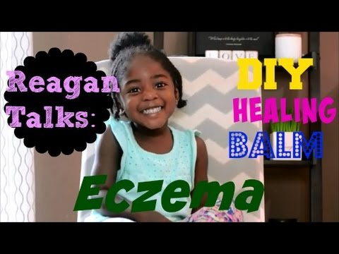 How to Make Homemade Eczema Treatment: Healing Balm  for Toddlers & All Skin Types