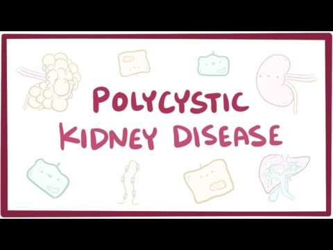Polycystic kidney disease - causes, symptoms, diagnosis, treatment, pathology