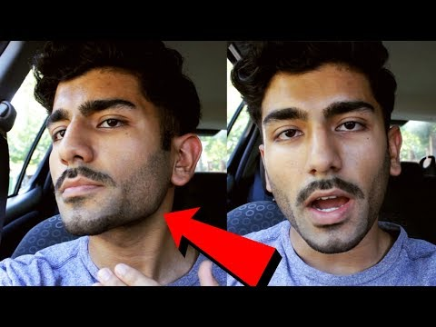 How to get a STRONG jawline!