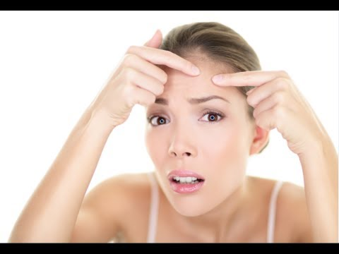 How to Prevent Pimples Naturally - Stop Pimples Fast