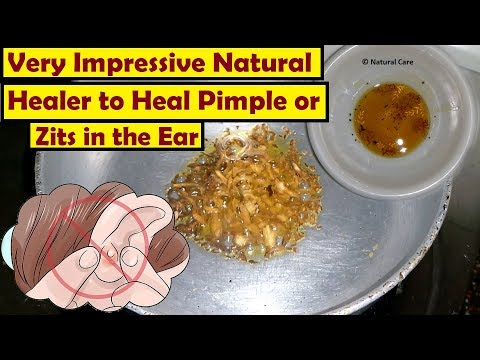 Very Impressive Natural Healer to Heal Pimple or Zits in the Ear