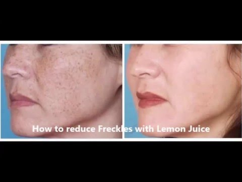 How to reduce Freckles with Lemon Juice