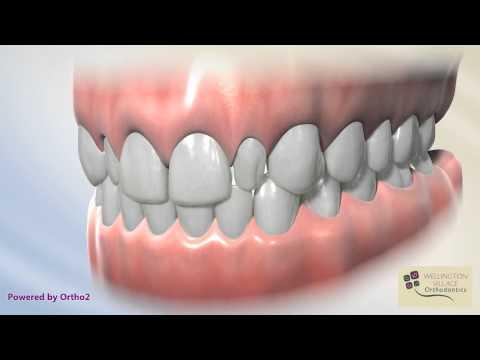 Peg Laterals - Diagnostic - Wellington Village Orthodontics