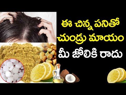 How to Get Rid of Dandruff | Natural Treatment for Dandruff | VTube Telugu