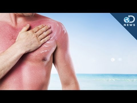 How Many Sunburns Can Cause Skin Cancer?