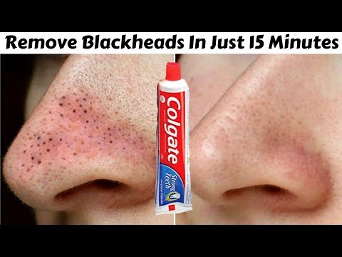 How To Remove Blackheads From Nose & Face || Toothpaste to Remove Blackheads Naturally At Home