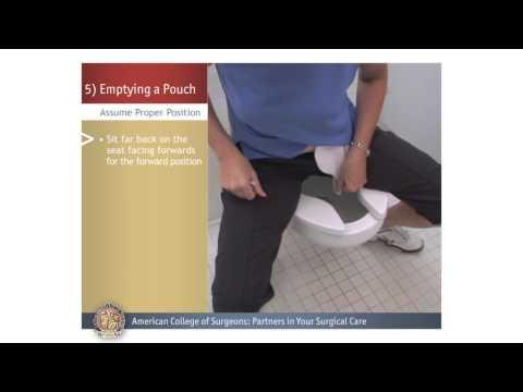 Colostomy/Ileostomy: Emptying a Pouch