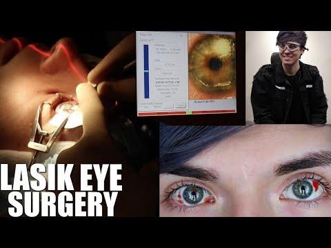 My Lasik Eye Surgery Experience! *LIVE FOOTAGE* | LasikPlus