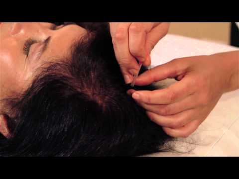 Treating Menopause with Acupuncture & Chinese Medicine
