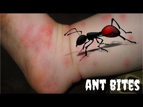 Home Remedies For Ant Bites | Top 5 Home Remedies for Ant Bites - clickbank review