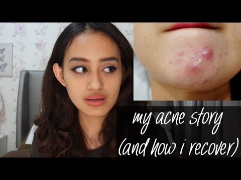 How to Cure Acne & Get Clear Skin | My Acne Story | Nadya Aqilla
