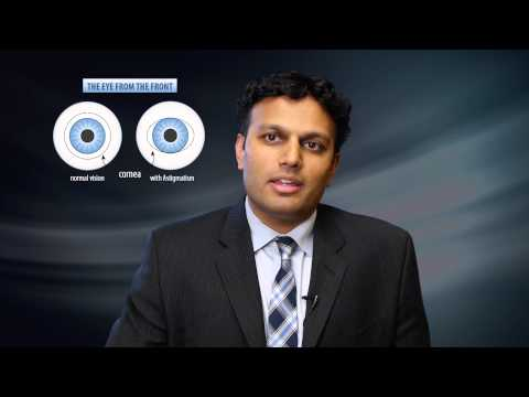 Cataract Replacement Lens Options - Milan Eye Center