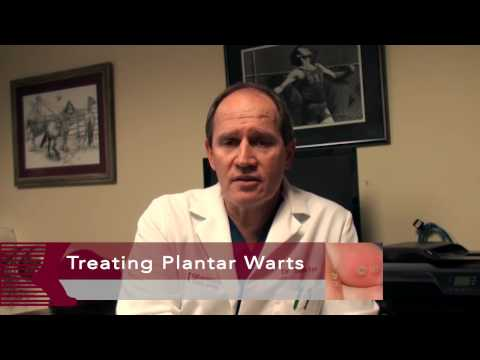 How to Get Rid of Plantar Warts