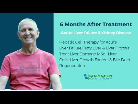 Stem Cell Treatment Kidney Disease CKD,CRF & Renal Failure