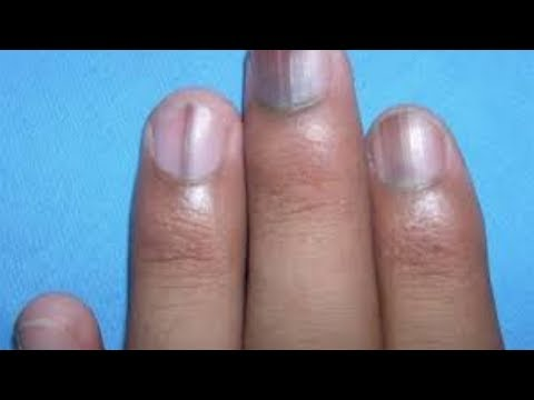 IF YOU SEE A BLACK LINE ON A PERSON'S FINGERNAIL, RUN AND CALL EMERGENCY, YOU'LL SAVE HIS LIFE!