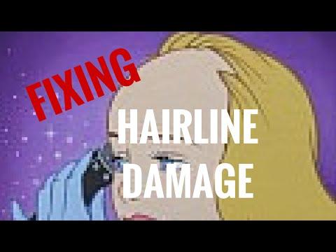 #28 Fixing Damaged Hairline Edges