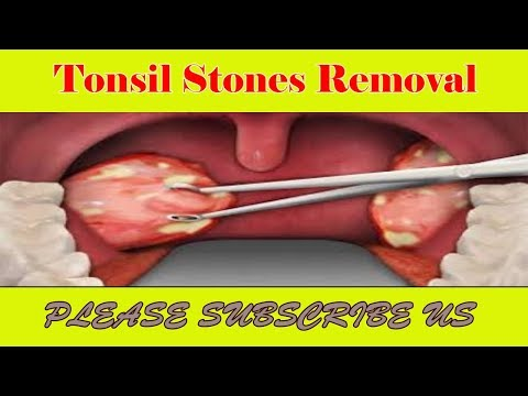 Tonsil Stones Removal - How to Successfully Remove Tonsil Stones