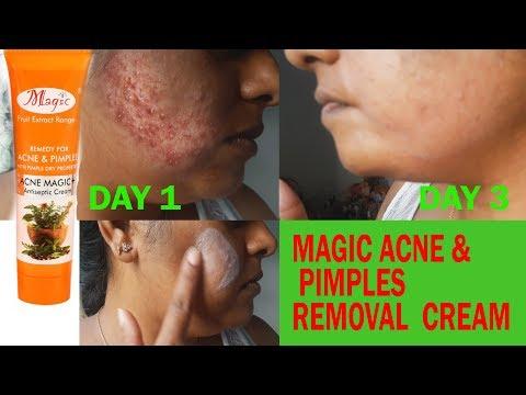 Magic Cream to remove Acne, Scars & Pimples | Acne Removal Cream | Review of Magic Acne Cream
