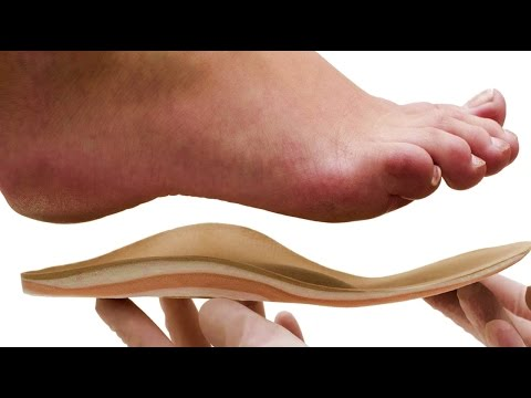 My Personal MD: The Truth About Orthotics | Podiatry