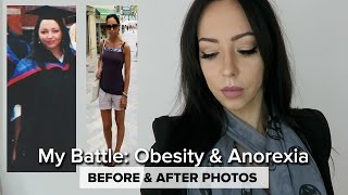 Download MY STORY | Anorexia & Obesity Journey Video