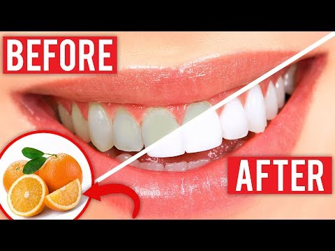 Good food for teeth - Eat These 9 Foods For Stronger, Whiter Teeth
