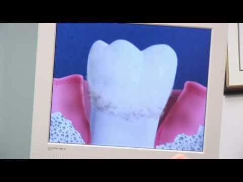 Dental Health & Gum Disease : How to Stop Gum Disease