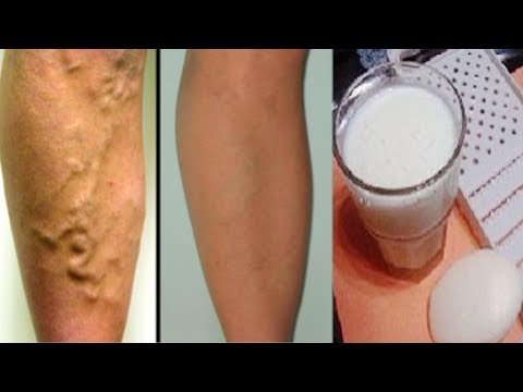 Home Remedy To Remove  Varicose Veins and Thrombosis with Only 2 Simple Ingredients