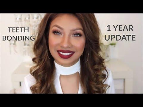 TEETH BONDING | FIXING GAP TEETH WITHOUT BRACES | 1 YEAR UPDATE
