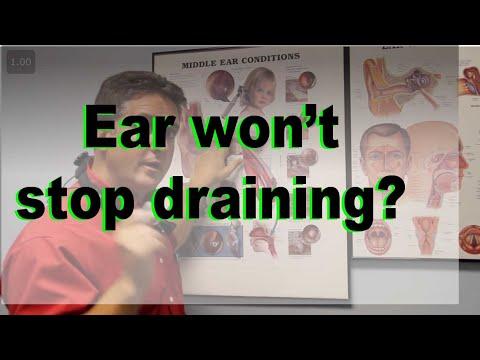 Chronic Draining Ear