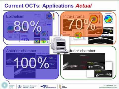AECOS 2017 presentation by Dan Reinstein on the ArcScan Insight 100