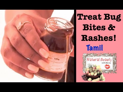 How to Treat Bug Bites and Rashes- Tamil Episode 4