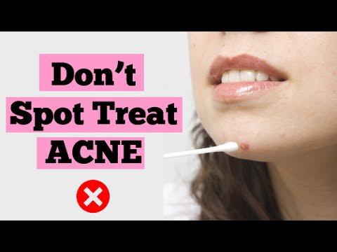 How to Clear Skin Fast | Don't Spot Treat Your Pimples | Spot Treatment for Acne