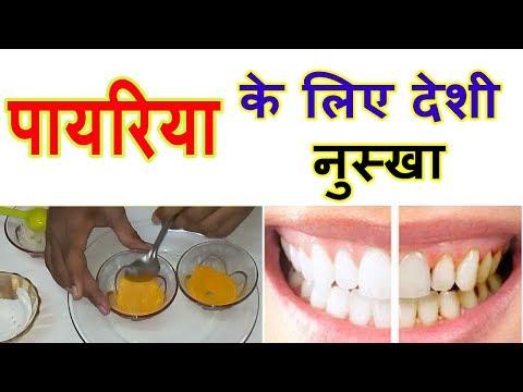 हिंदी में पायरिया का घरेलू उपचार Natural Home Remedies for Pyorrhea