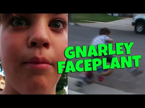 EXTREME OBSTACLE COURSE (GNARLY FACEPLANT)!