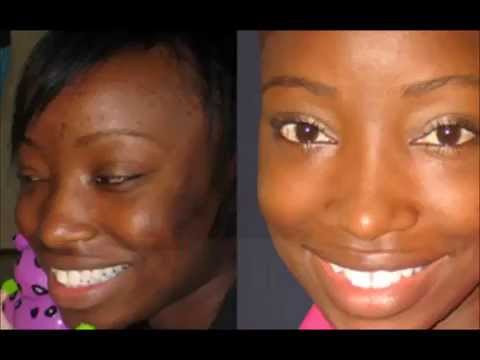 Home Remedies For Black Skin Lightening -Black Skin Care Advice How To Lighten The Underarms
