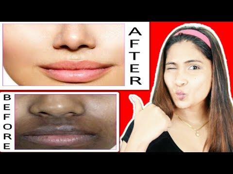 Remove dark patches/pigmentation/dark spots around mouth fast & naturally/ RABIA SKIN CARE