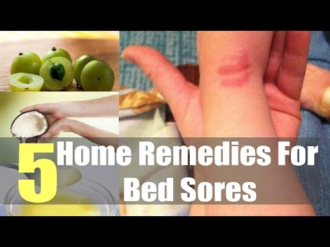 5 Effective Home Remedies For Bed Sores.