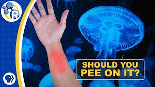 should you pee on a jellyfish sting