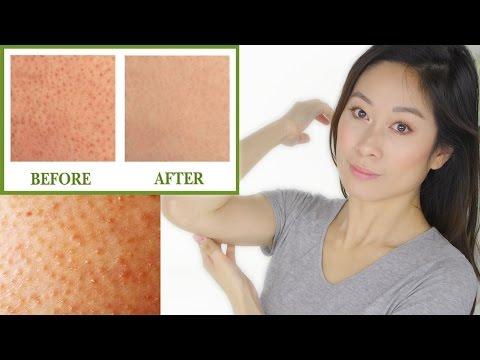 Keratosis Pilaris Treatment | Bumps On Skin
