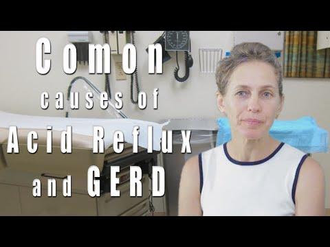 GERD and Acid Reflux. Common Causes.