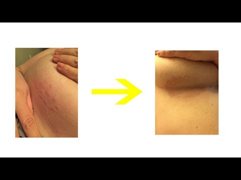No more  Rash under Breasts After use this remedies you can see the result
