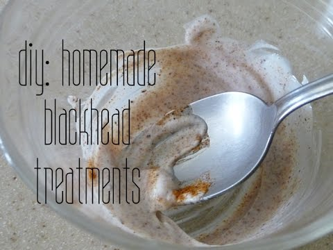 DIY // Homemade Blackhead Treatments