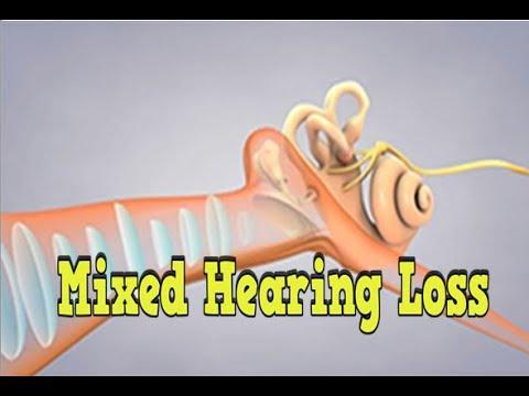 Mixed Hearing Loss, Causes Of Conductive Hearing Loss, Hearing Date, Ear Infection And Hearing Loss